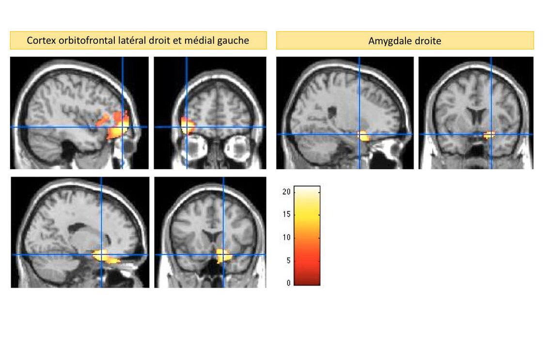 You are currently viewing Regelmäßiges Anschreien, Schlagen oder Schütteln schädigt das Gehirn